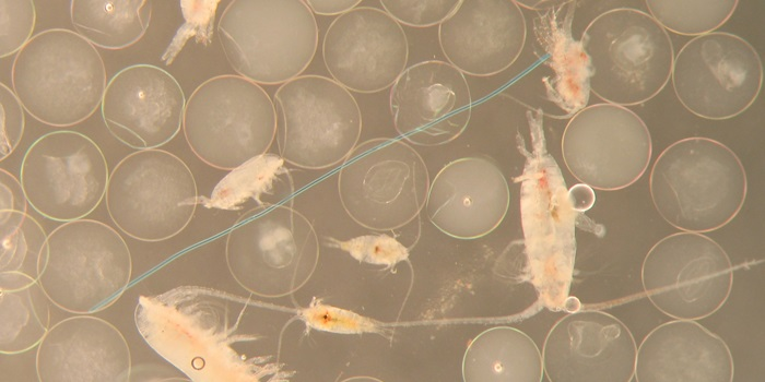 Fish eggs, zooplankton and a blue plastic fibre. Photo: Bastian Huwer, DTU Aqua